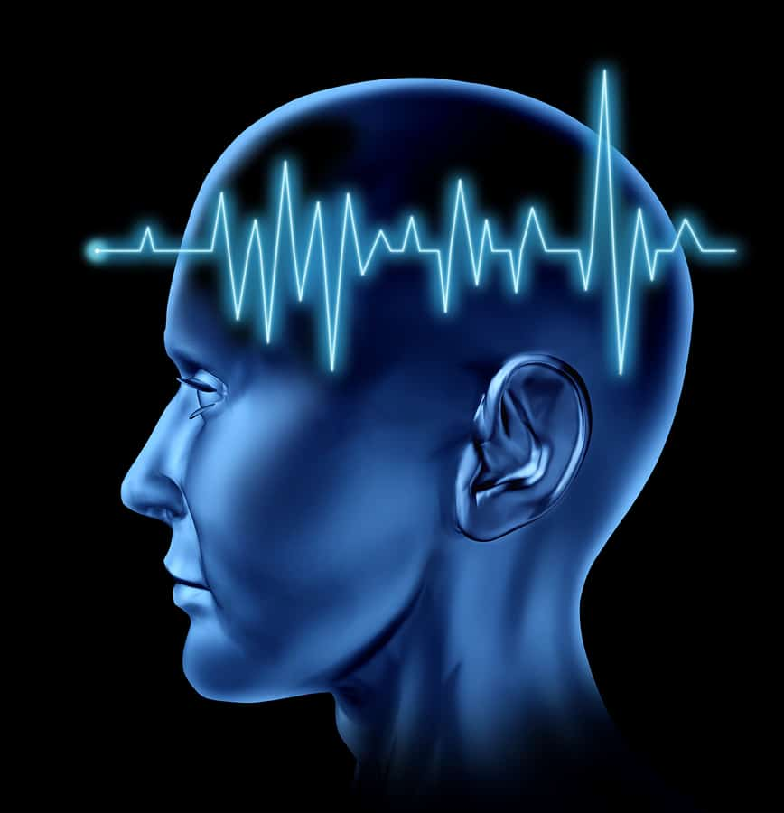 bigstock Brain stroke circulation heart