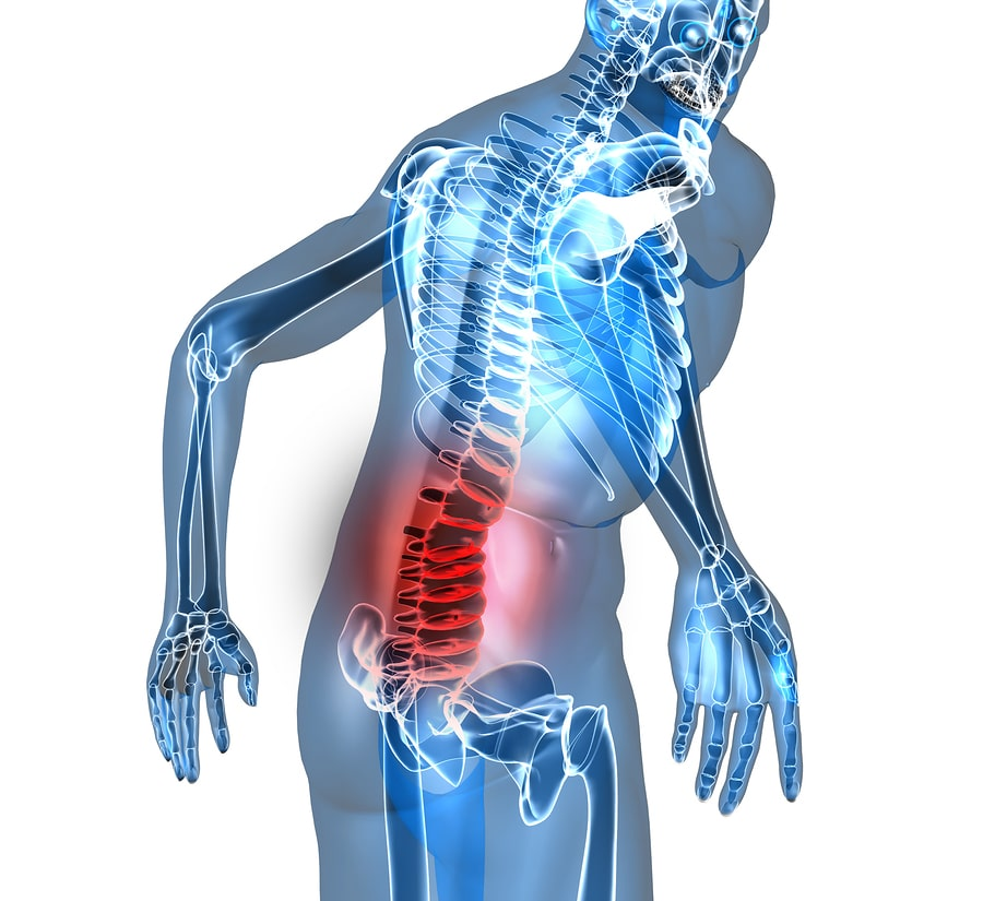 bigstock Back pain