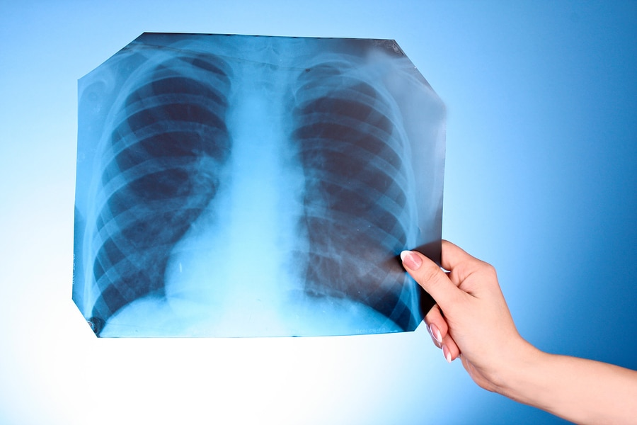 bigstock X Ray Image of chest on blue b